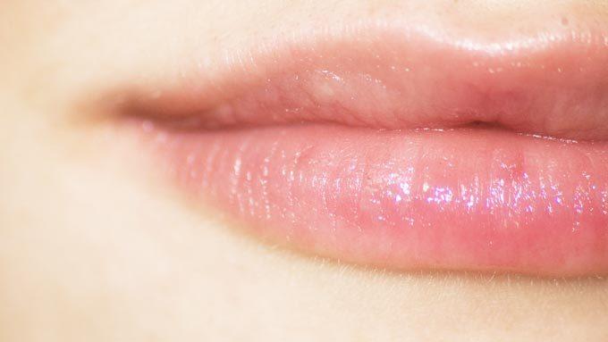 口唇ヘルペスと口角炎の出来る場所